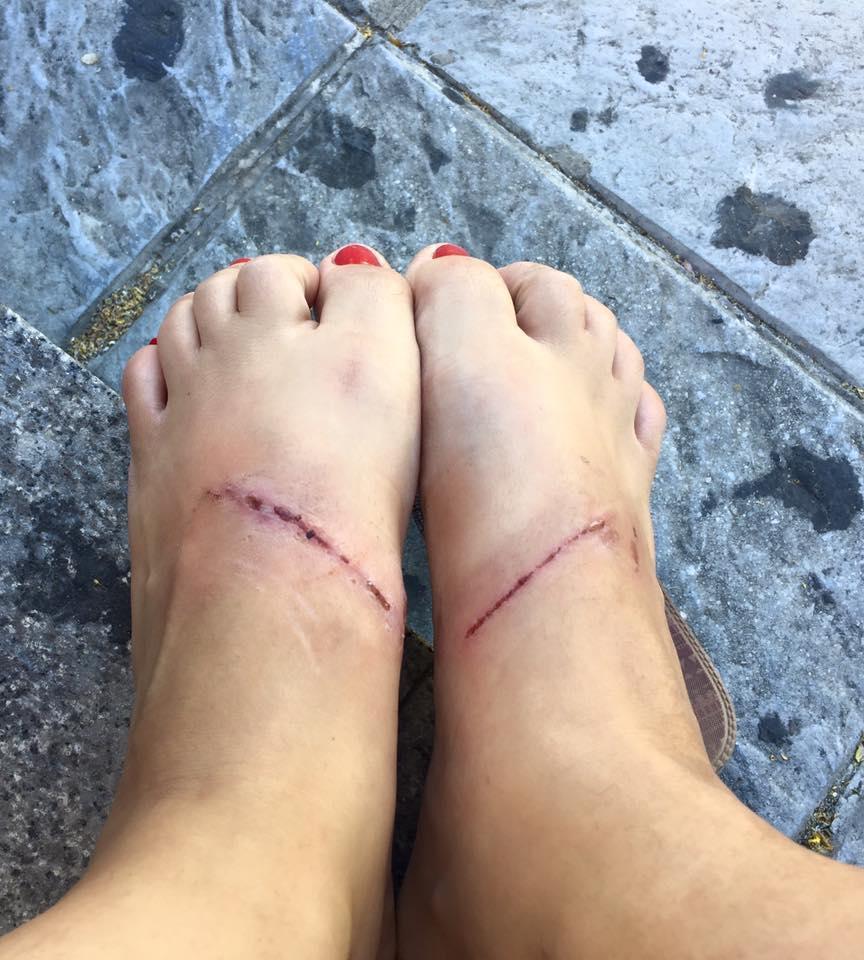 De Zara Denuncia Una Sandalias Sevillana Unas Que Provocan A5LR4j3q